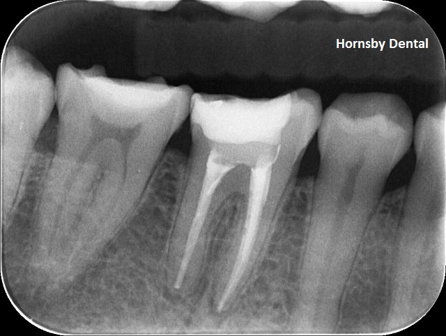 hornsby-dental-root-canal-therapy-post-op