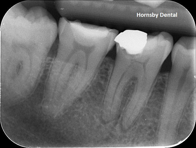 hornsby-dental-root-canal-therapy-pre-op