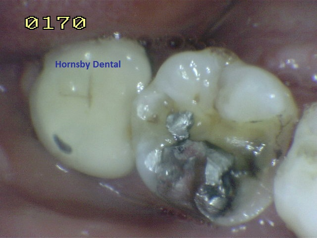hornsby-dental_hornsby-dentist_case-10-before