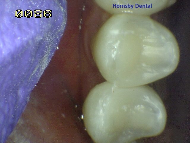 hornsby-dental_root-canal-therapy_after