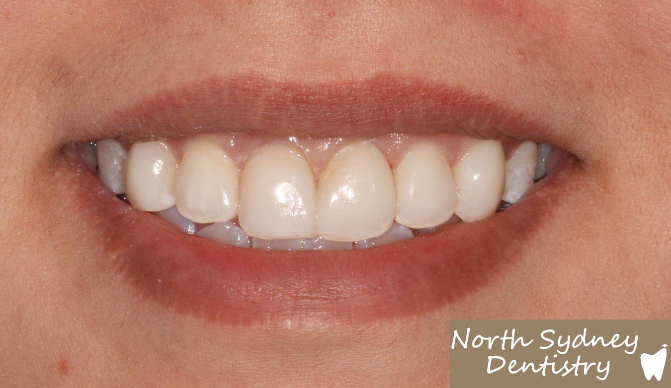 North-Sydney-Dentistry-Veneers-After-2