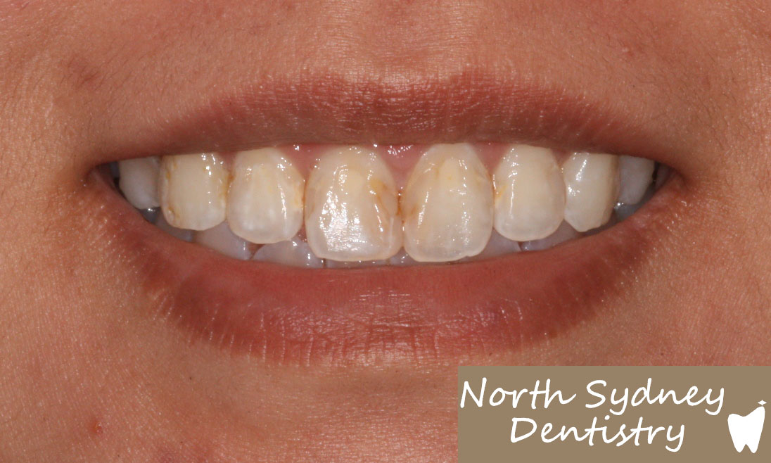 North-Sydney-Dentistry-Veneers-Before-2