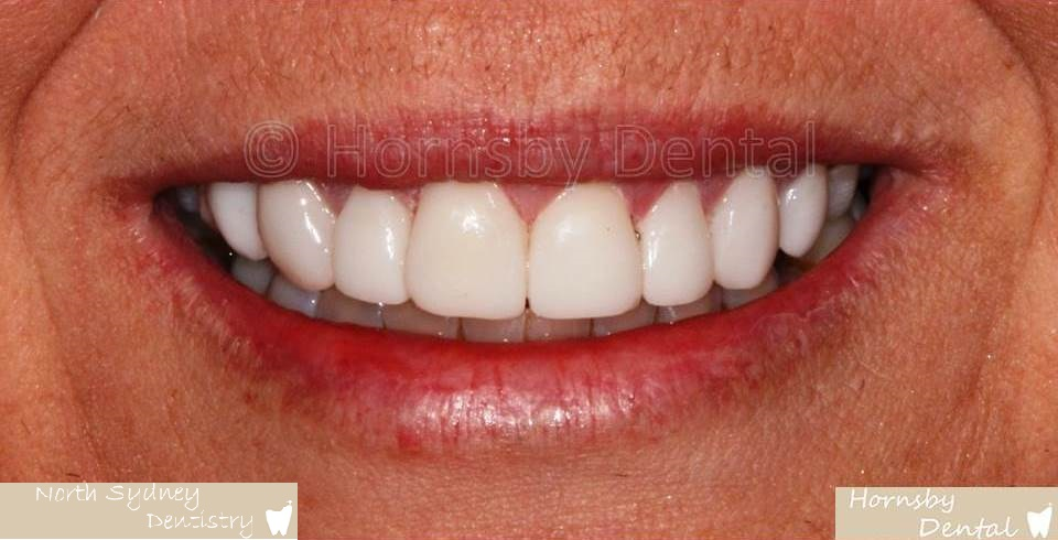 North_Sydney_Dental_Care_Veneer_Case_01-After
