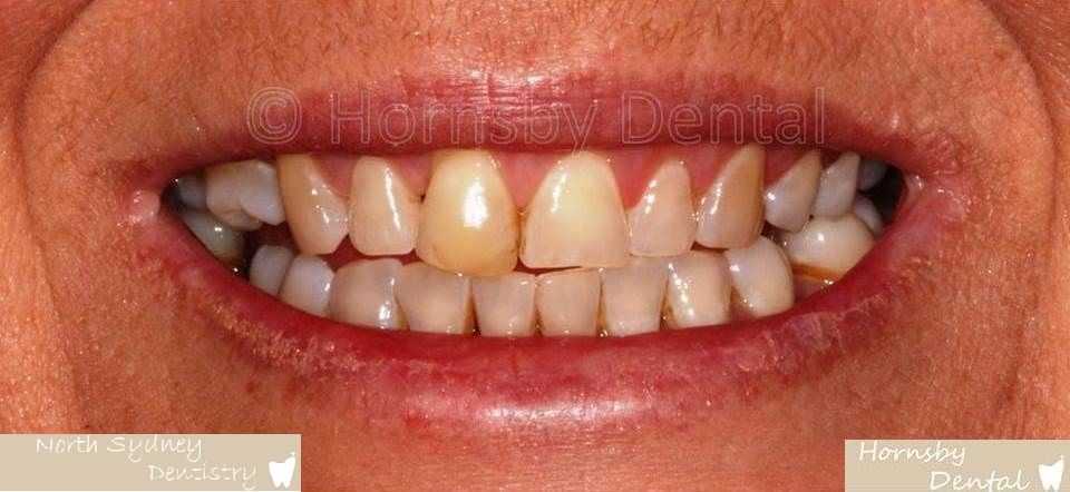 North_Sydney_Dental_Care_Veneer_Case_01-Before
