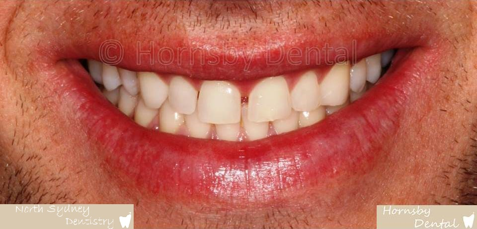 North_Sydney_Dental_Care_Veneer_Case_02-Before