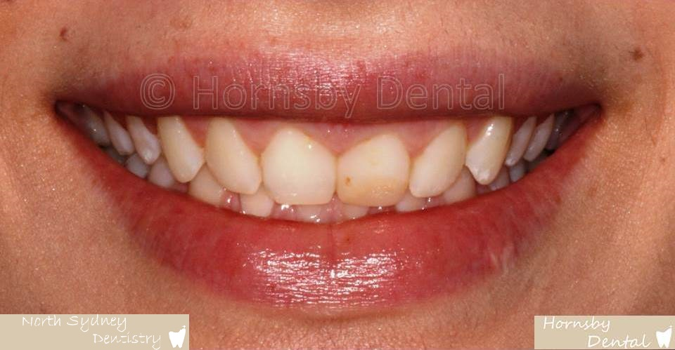 North_Sydney_Dental_Care_Veneer_Case_03-Before