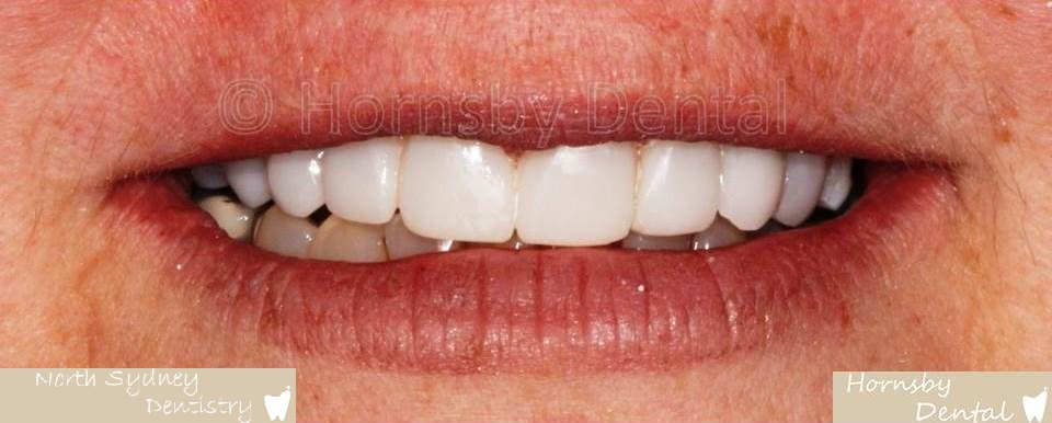 North_Sydney_Dental_Care_Veneer_Case_04-After