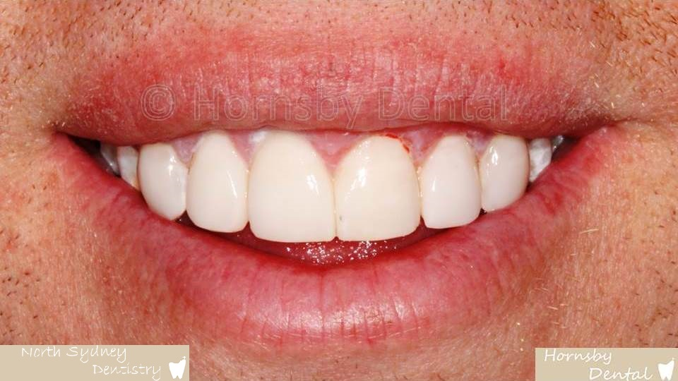 North_Sydney_Dental_Care_Veneer_Case_05-After