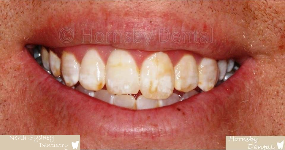 North_Sydney_Dental_Care_Veneer_Case_05-Before