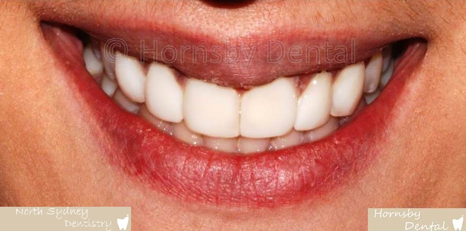North_Sydney_Dental_Care_Veneer_Case_06-After