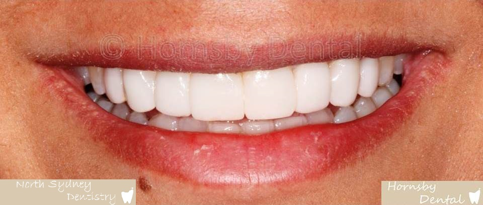 North_Sydney_Dental_Care_Veneer_Case_07-After