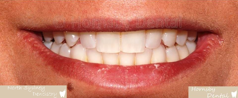 North_Sydney_Dental_Care_Veneer_Case_07-Before