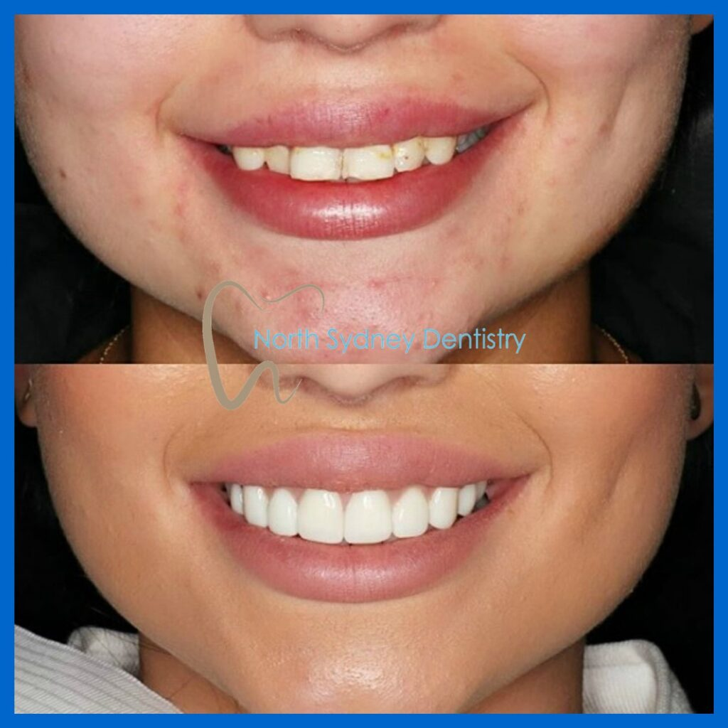 Porcelain veneers in North Sydney