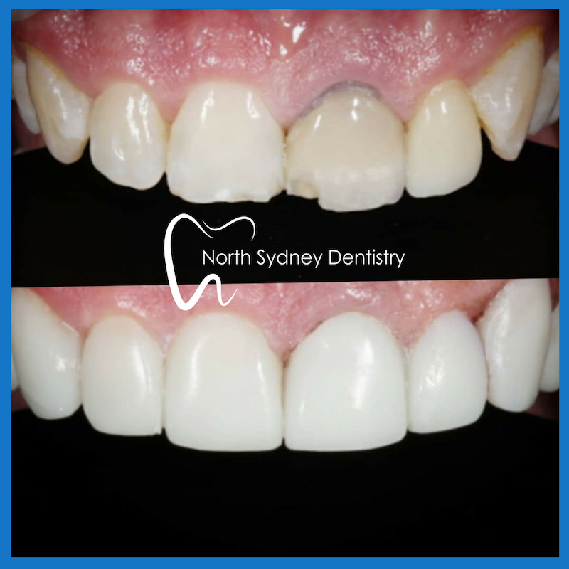 Best dentist for veneers in North Sydney