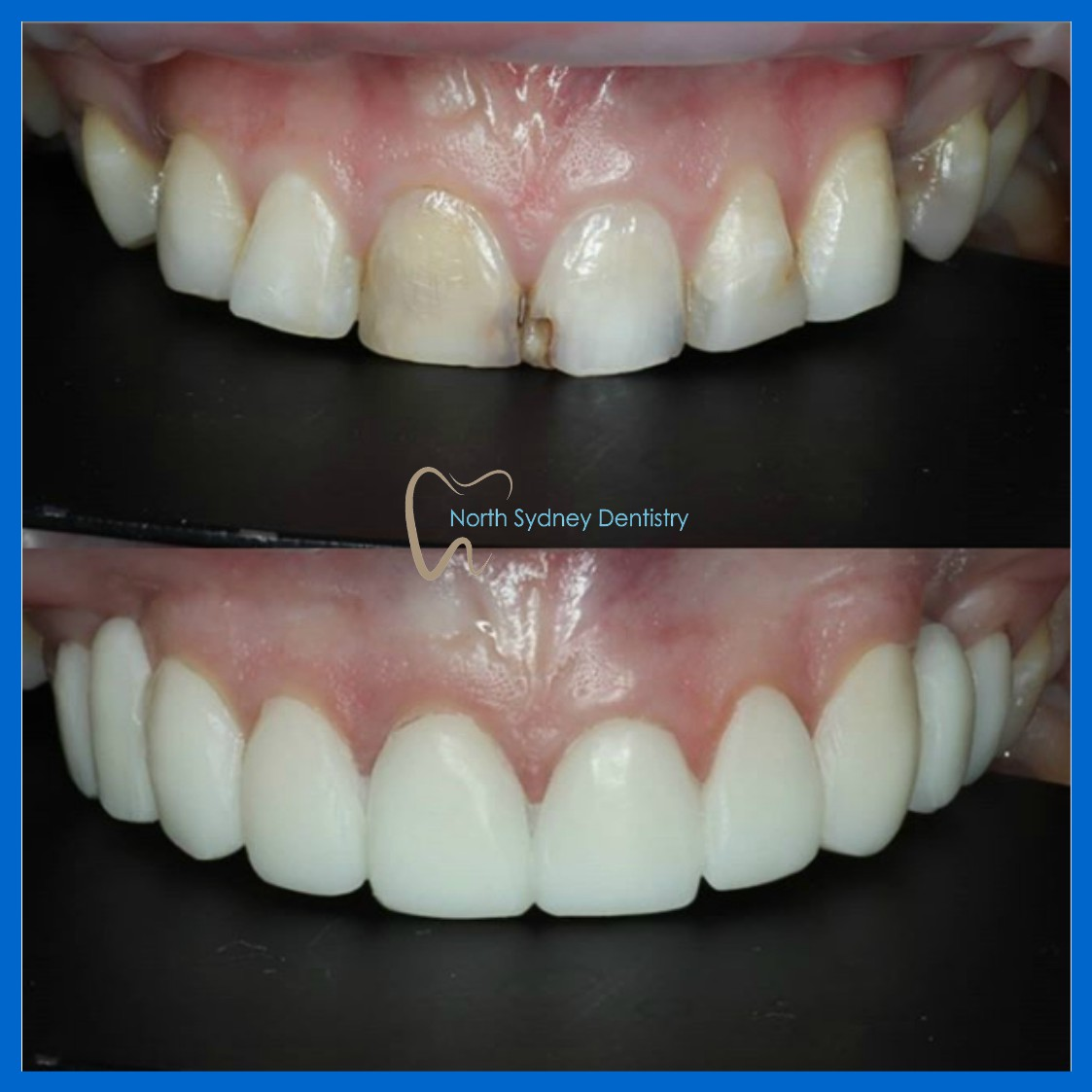 Dental veneers in North Sydney