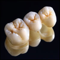 dental-crowns-lava