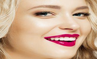 Dental Veneer, dental veneers, north sydney, dental veneers in North Sydney