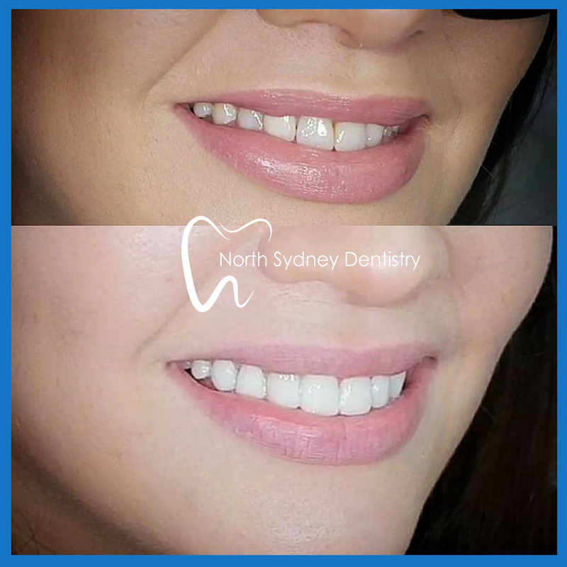 Dental veneers in North Sydney