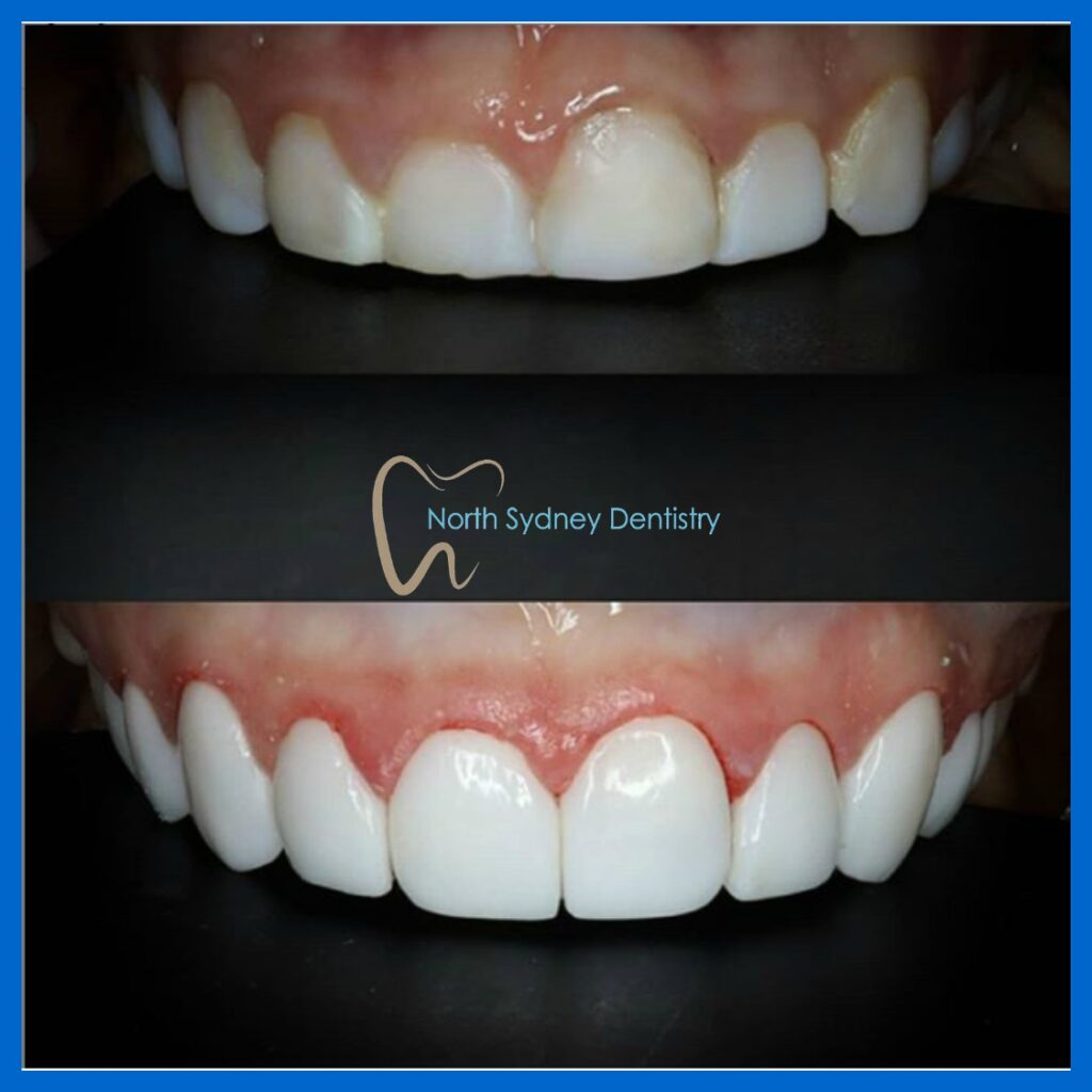 Affordable dental veneers in North Sydney