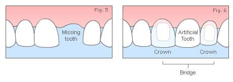 hornsby-dental-bridge