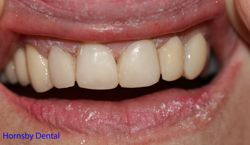 hornsby-dental-case-1-after