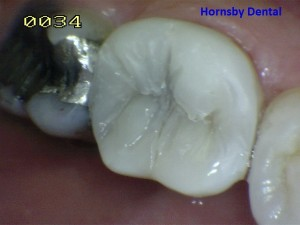 hornsby-dental-case-5-after-hornsby-dentist-300x225