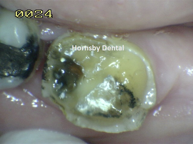 hornsby-dental-case-6-before