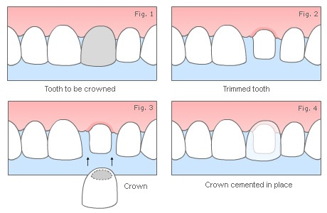 hornsby-dental-crowns-figure-1