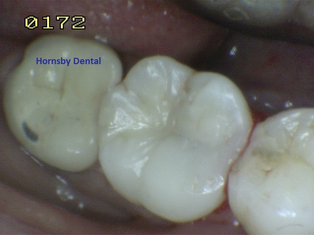 hornsby-dental_hornsby-dentist_case-10-after