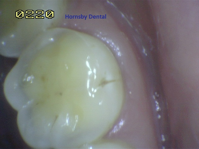 hornsby-dental_hornsby-dentist_dental-fillings-before