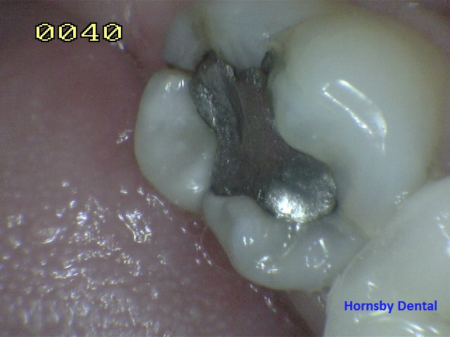 hornsby_cosmetic_dentist_case-8_before