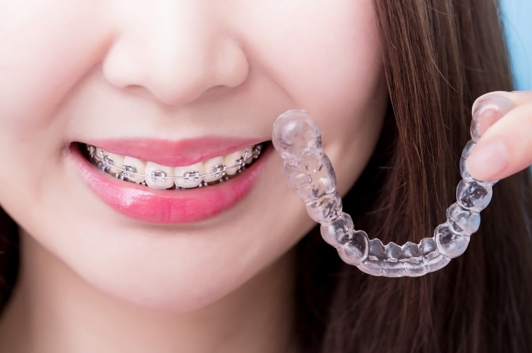 Invisalign vs braces cost
