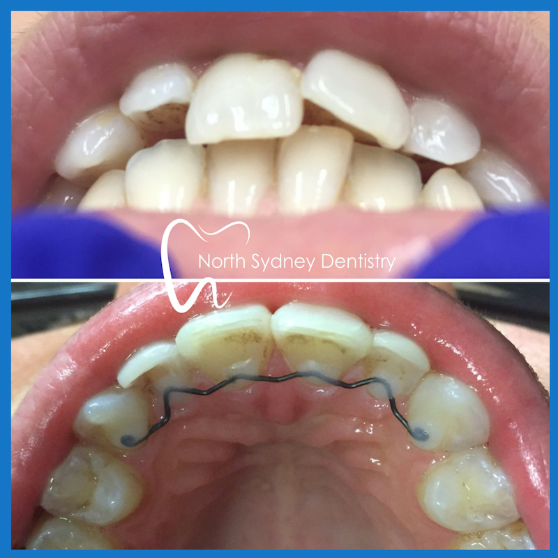 Invisalign in North Sydney