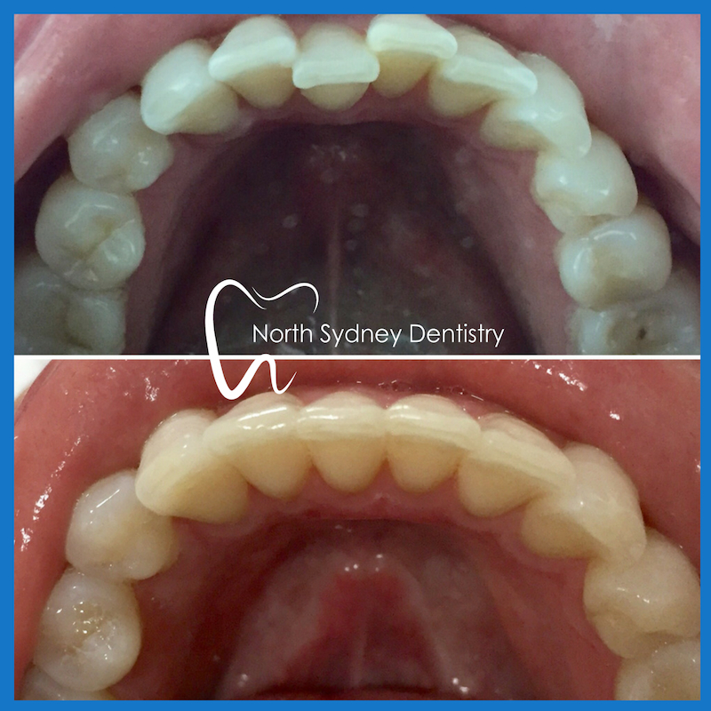 Invisible braces in North Sydney