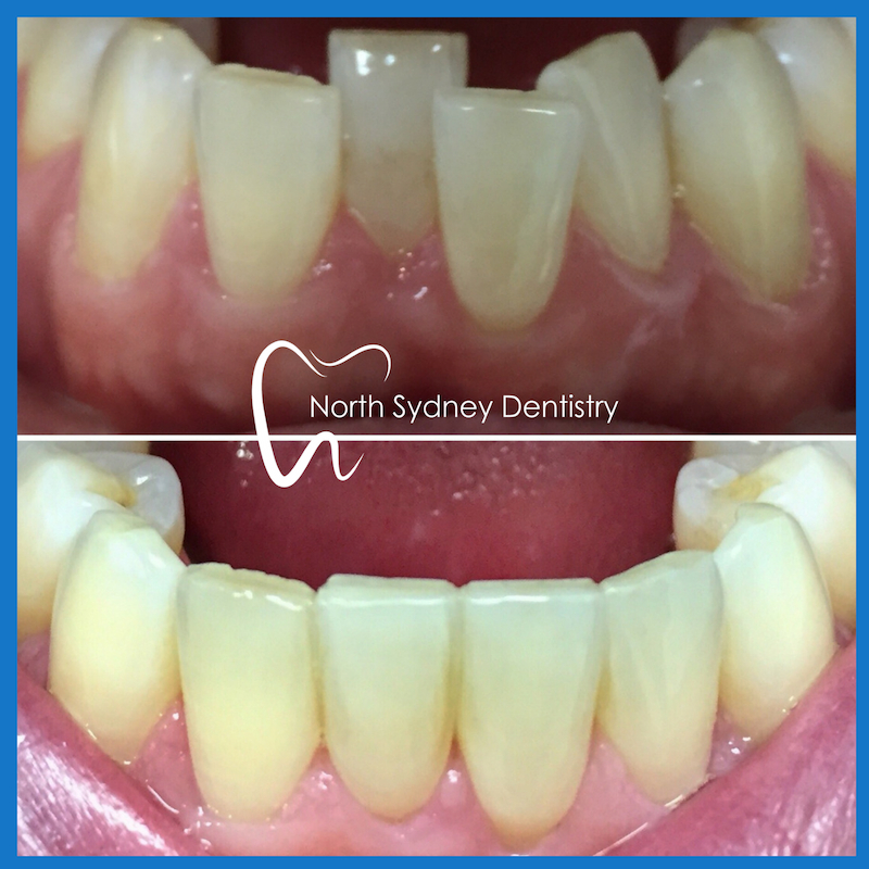 Clear braces in North Sydney