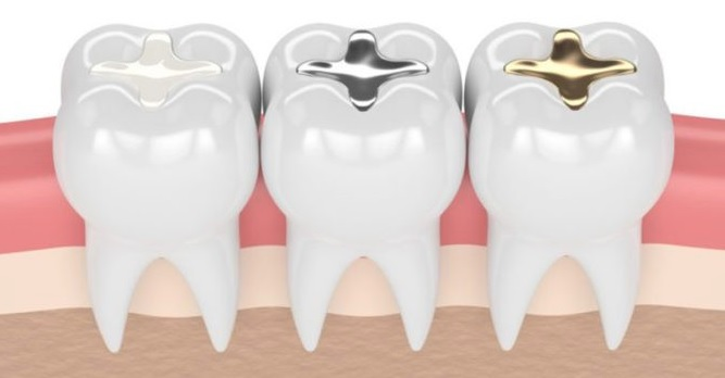 Dental Fillings in North Sydney