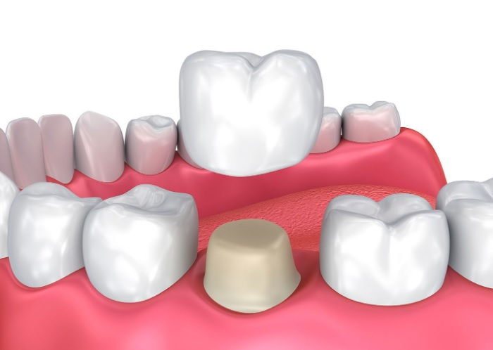 Dental crowns in North Sydney