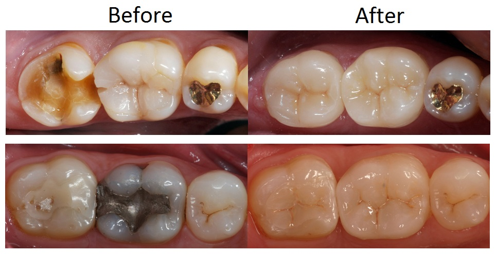 How Much Is A Crown >> Dental Crowns And Bridges North Sydney Dentistry