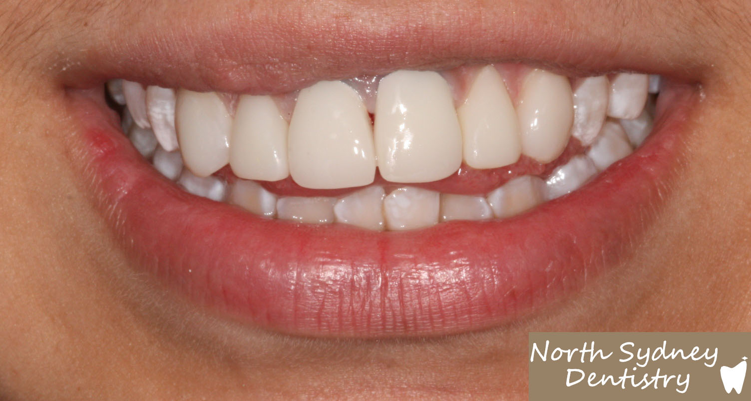 North-Sydney-Dentistry-Veneers-After-1