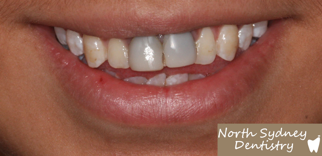 North-Sydney-Dentistry-Veneers-Before-1