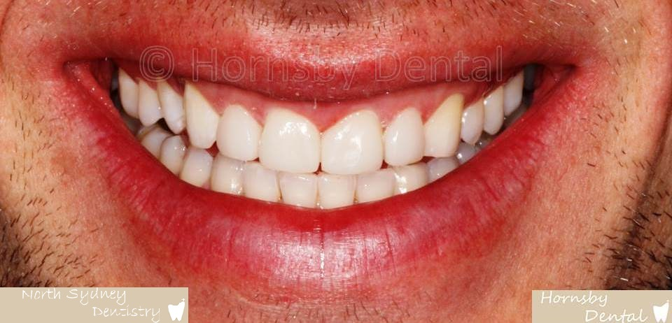 North_Sydney_Dental_Care_Veneer_Case_02-After