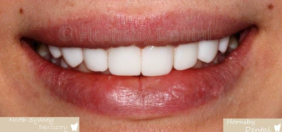 North_Sydney_Dental_Care_Veneer_Case_03-After