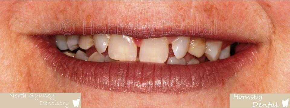 North_Sydney_Dental_Care_Veneer_Case_04-Before
