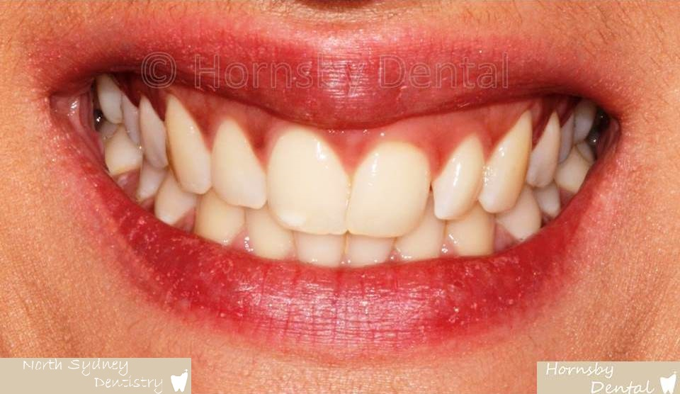 North_Sydney_Dental_Care_Veneer_Case_06-Before