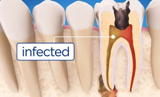 Root Canal Cost Sydney