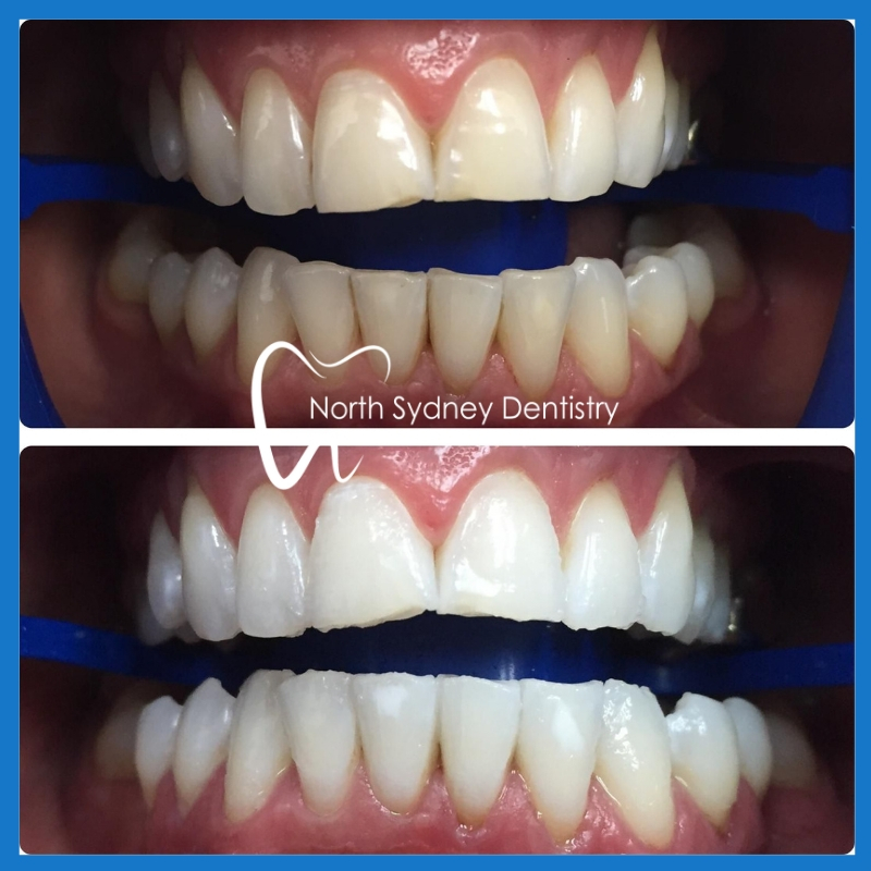Teeth whitening in North Sydney