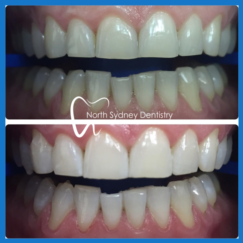 Best teeth whitening in North Sydney