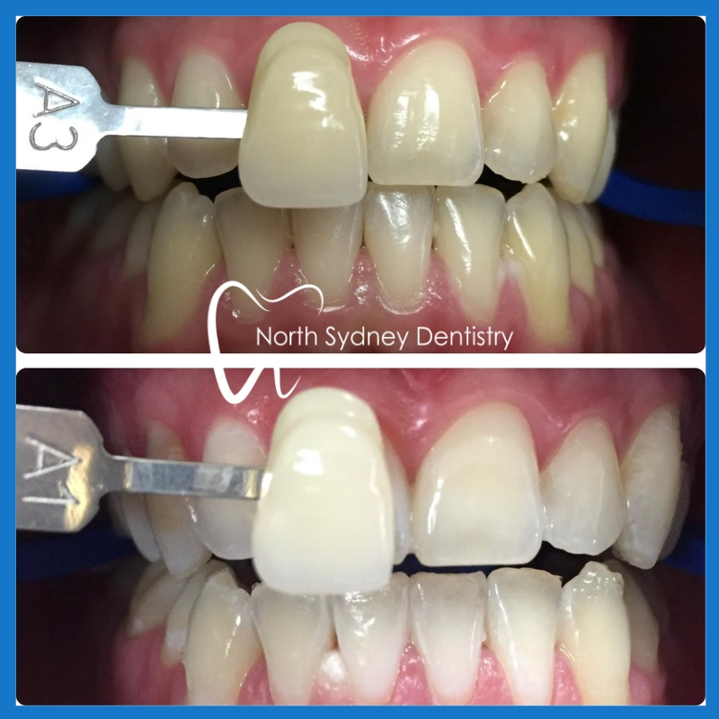 Affordable teeth whitening in North Sydney