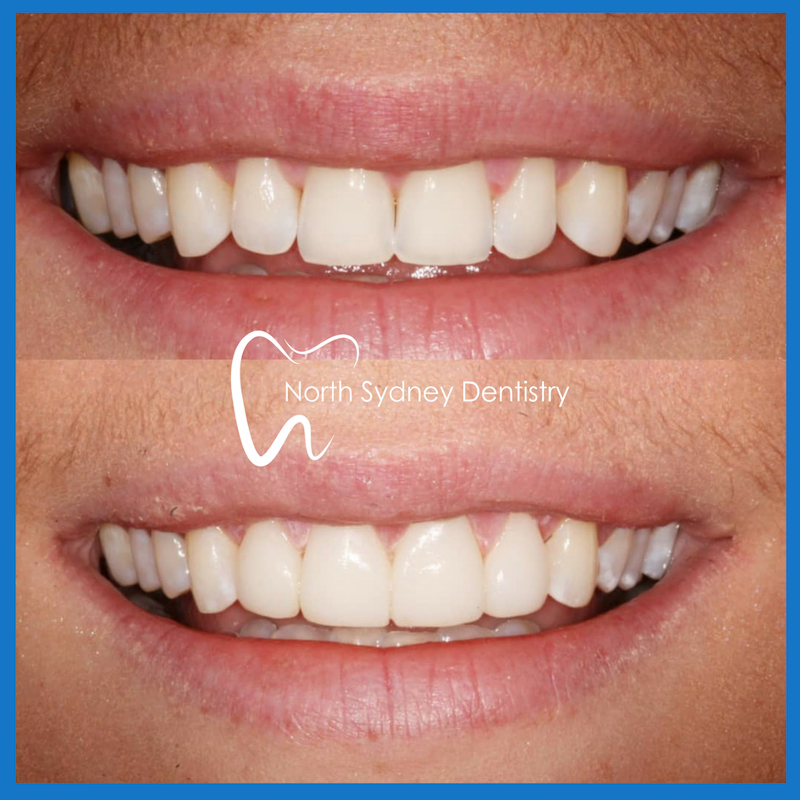 Best veneers in North Sydney