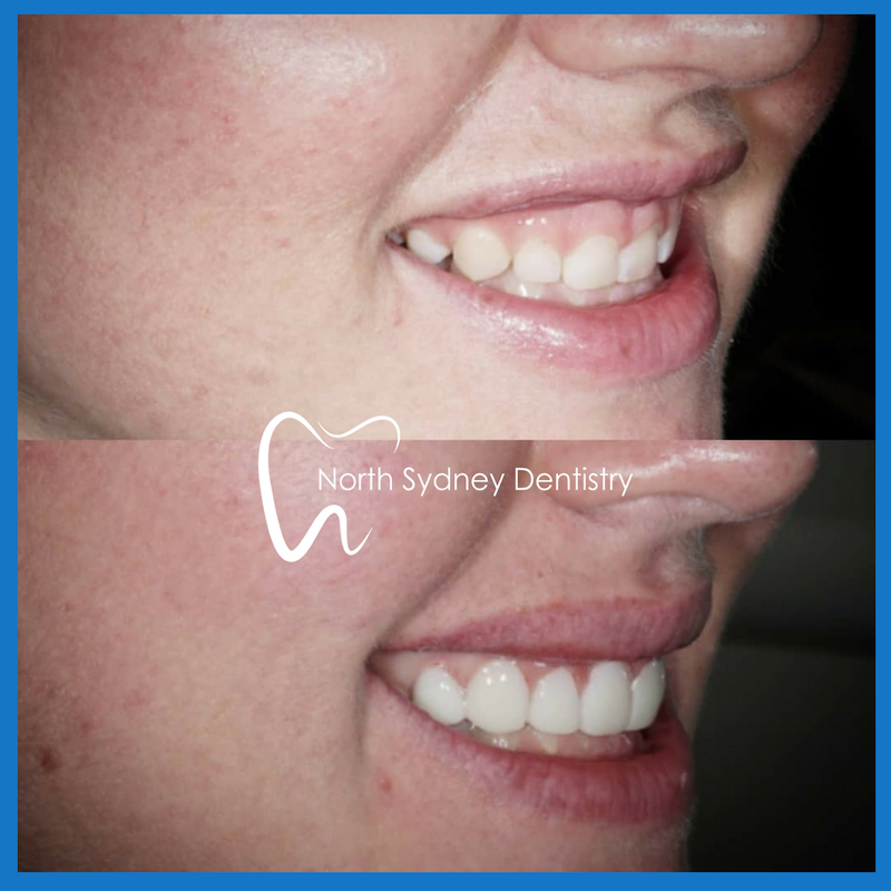 Veneers in North Sydney
